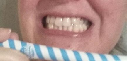 Smile detox jour 2